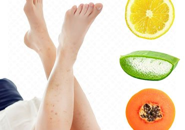How to Get Rid of Dark Spots on Legs