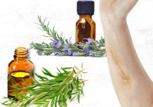 Very Effective Essential Oils for Scars!