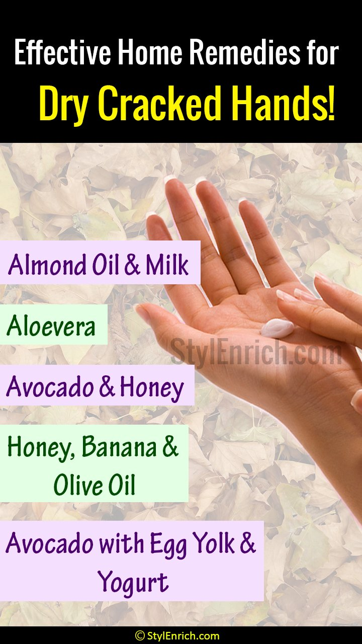 Home Remedies for Dry Cracked Hands