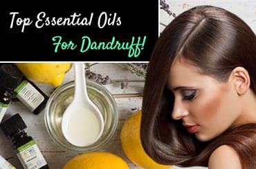 Top Essential Oils For Dandruff!
