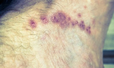 Top 9 Home Remedies For Scabies Styles At Life
