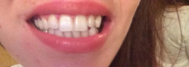 teeth ebfore