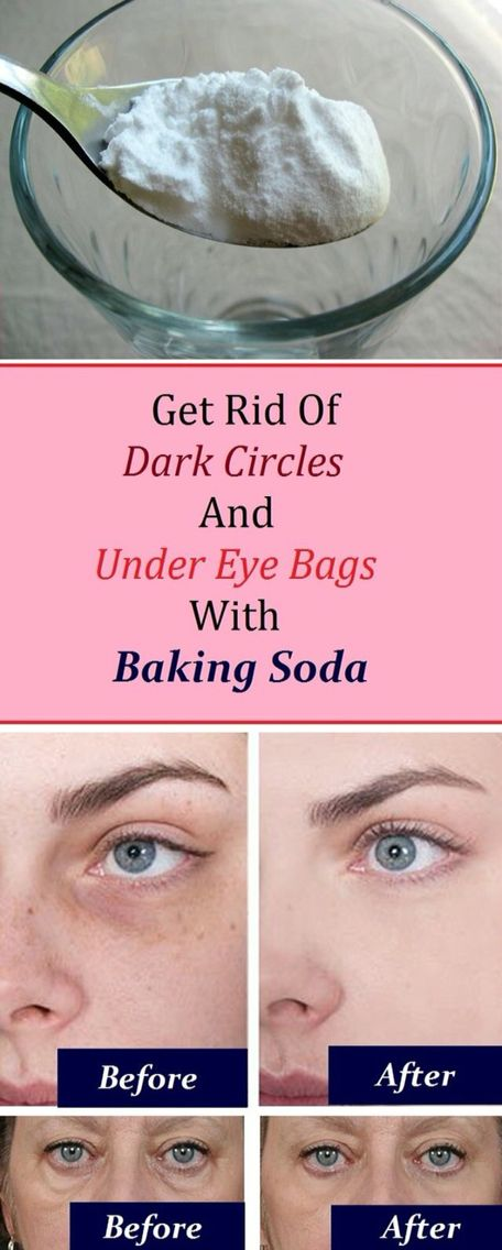 remove dark circles and under eye bags with backing soda