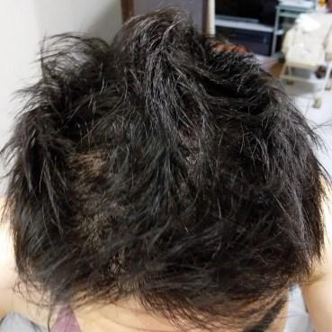 200714_おすすめ育毛剤 ミノキシジル錠剤_前頭部