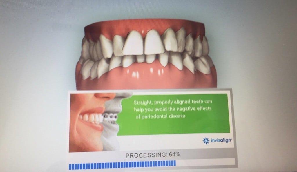 Swissaligner résultat image 3D