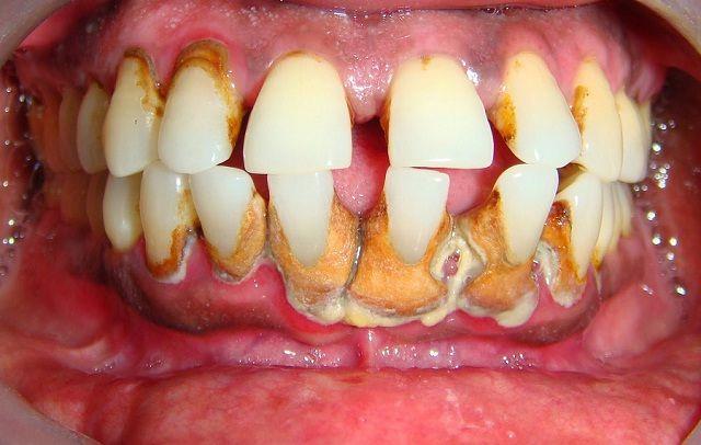 Ketahui Penyebab Karang Gigi Sebagai Bahan Pendidikan Kesehatan