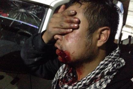 Sobre las personas heridas en Chilpancingo por agresión de policías federales