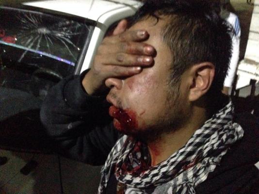 Ernesto Cruz –estudiante de la Facultad de Ciencias Políticas y Sociales de la UNAM, herido tras recibir el impacto de una bomba de gas lagrimógeno en la boca.