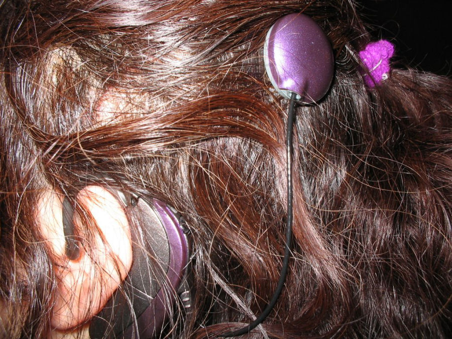 Cochlear Implant with T-Mic