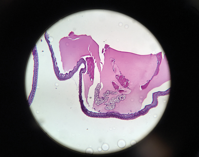 A worm segment, dyed so the virus is visible, as viewed under a microscope. (Credit: Joe Mcinnis photo)