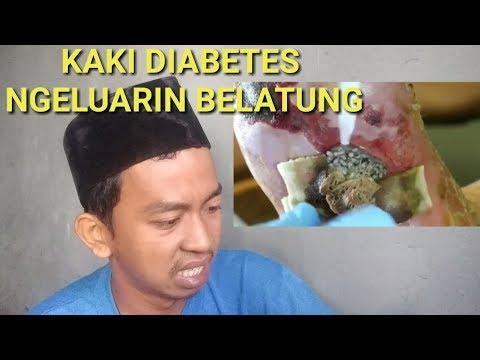 Sampai muntah reaksi mengeluarkan  belatung di kaki orang diabetes