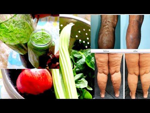 No sufras más de diabetes, hemorroides, artritis y venas varicosas esta hortaliza lo quito todo en 1