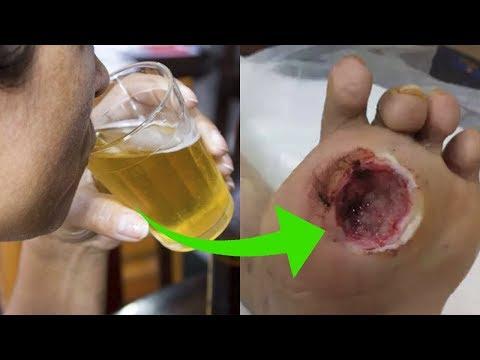 Você nem imagina como é perigosa a mistura entre diabetes e álcool