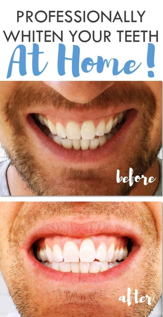 Professionally Whiten Your Teeth at Home with Smile Brilliant - Read more!