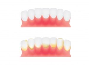 Gum Disease - Ellijay Dentist