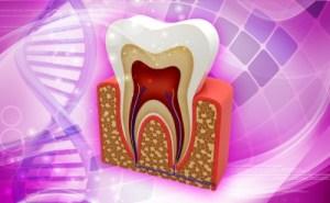Wisdom Teeth Removal Ellijay Dentist