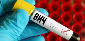 В 2019 году умерло 76 ВИЧ-инфицированных больных