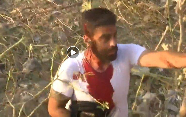 Pamje të një të plagosuri në distancë të largët nga shpërthimi në Beirut