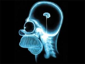 hersenen-homer