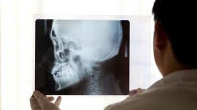 Ilustrasi pasien tumor ameloblastoma.