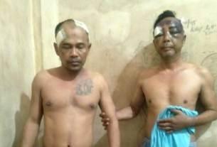 DIHAJAR: Dua pelaku jambret Iwan Bahar dan Irwanto babak belur dihajar massa.