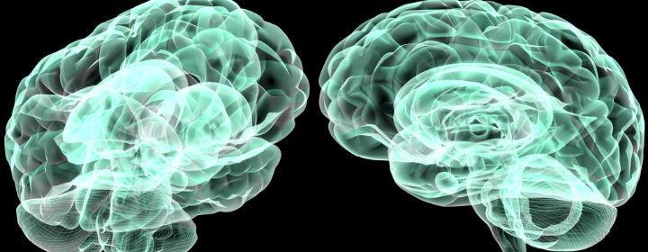 Hjernefedt