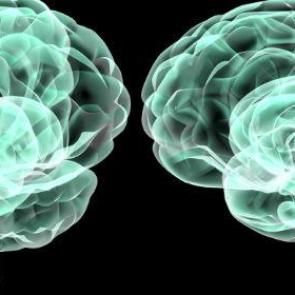 hjernekonference