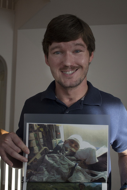 Adam Stelmach holds up a photo of when he was in a coma after his accident that left him with a tramuatic brain injury. Photo credit by Trevor Stamp