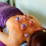 Plastic suction cups placed on womens back,