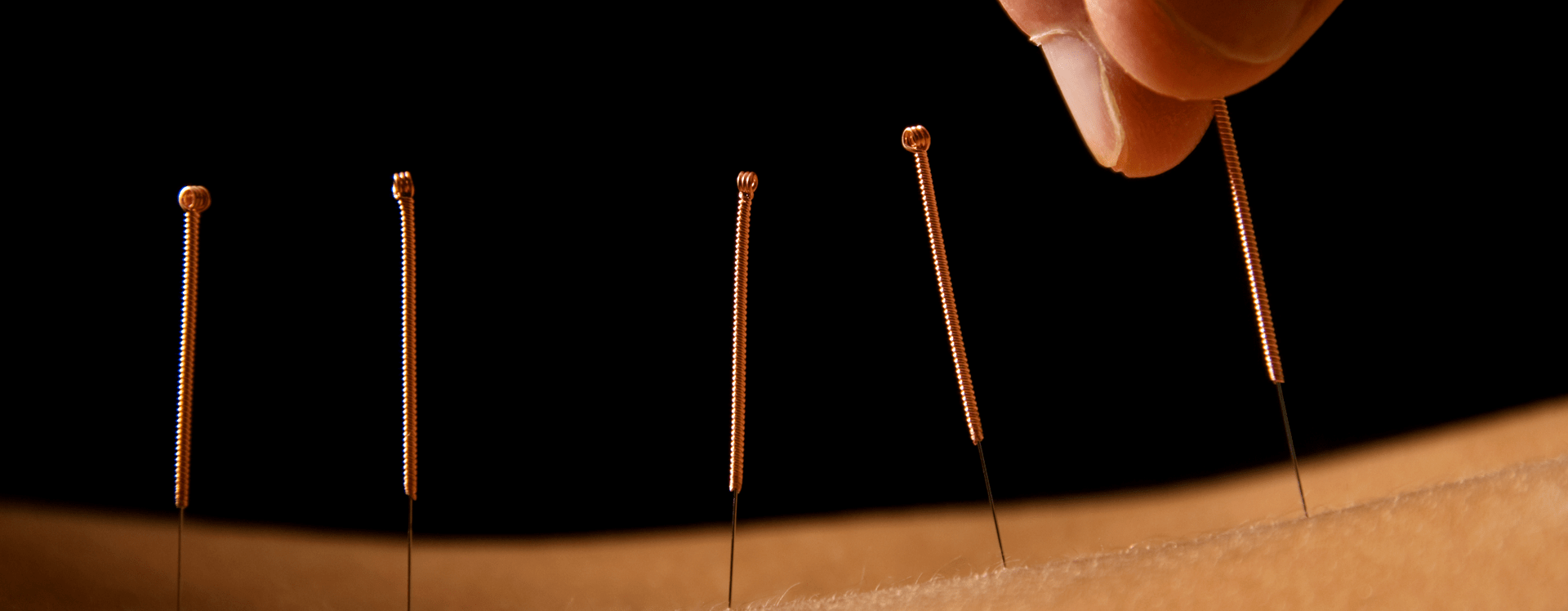 Acupuncture in Ware and Letchworth Garden City.