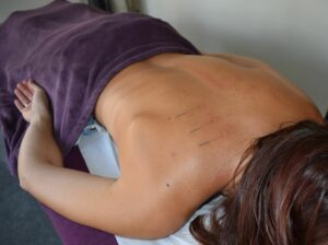 Person lying down with acupuncture needles on upper back.