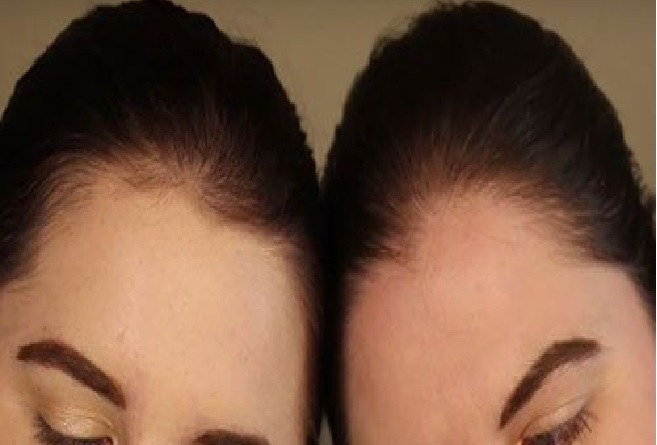 Identical twins dated same man for 5 years without him knowing
