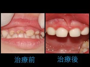 乳牙斷裂的牙科處理 | 小太陽牙醫診所