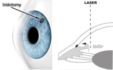 iridotomy