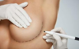 Breast Augmentation - Reasons, Risks, Price, Cost, Etc.