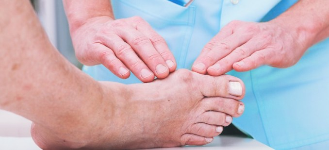 Can Essential Oils Help To Heal Bunions? How to Use Them