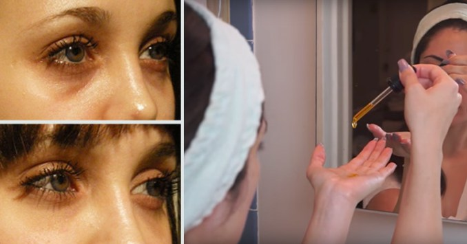 Essential Oils for Dark Circles: Do They Really Work?