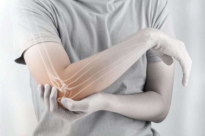 What Are The Best Essential Oils Used for Tennis Elbow