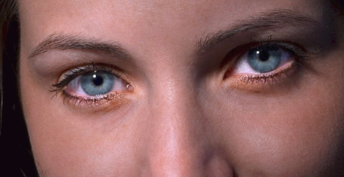 5 Recommended Essential Oils for Pink Eye: How to Use Them