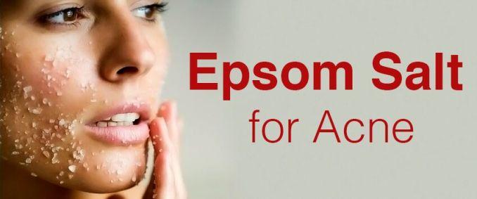 Using Epsom Salt for Acne Treatment - Does it Really Work?
