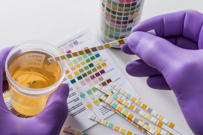 Jobs that Don't Drug Test