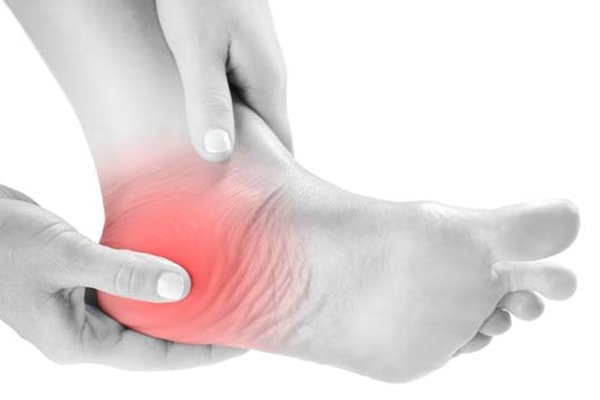 32 Natural Remedies To Get Rid Of Heel Pain