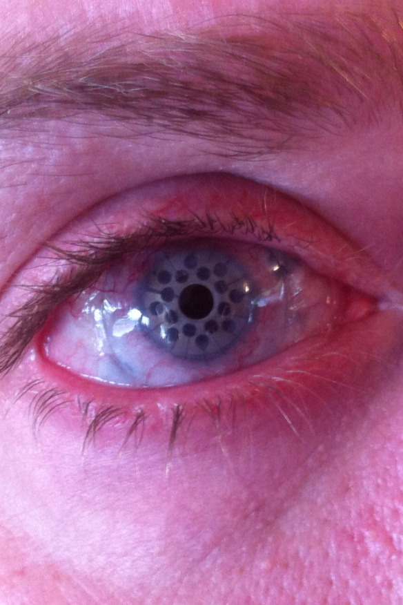 uncles-eye