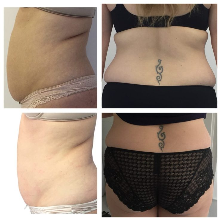 does laser lipo really work