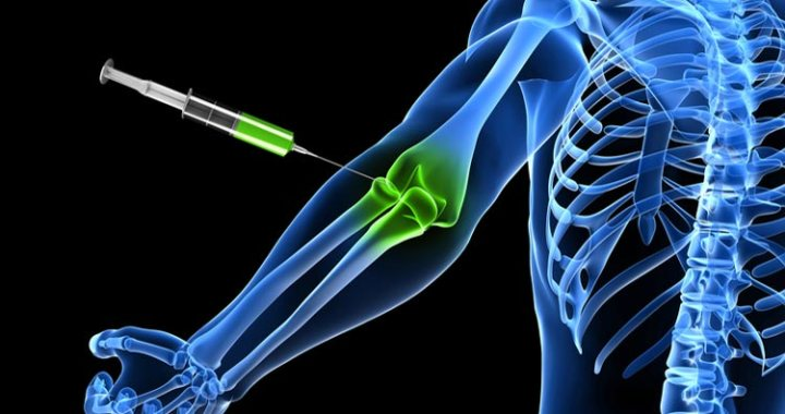 Tennis Elbow pain. Injury and Prevention. Super Soldier Project.