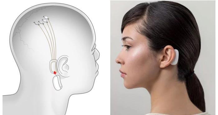 Neuralink vai ligar o cérebro ao computador