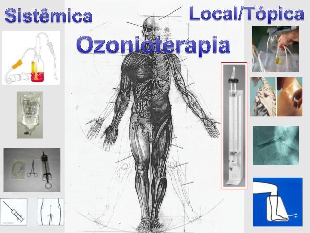 O que é Ozonioterapia e para que serve