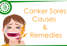 How to get rid of canker sores Naturally