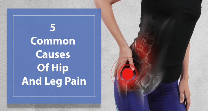 5 Common Causes Of Hip And Leg Pain