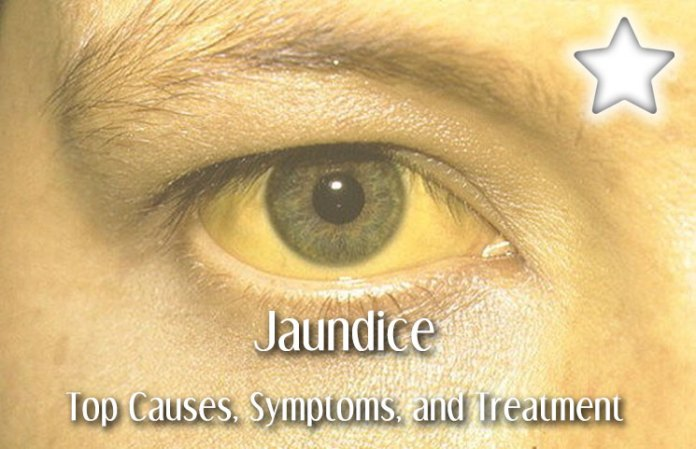 Jaundice Review The Top Causes Symptoms And Treatment